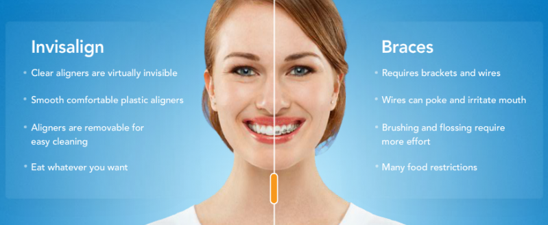 Invisalign®-comparison